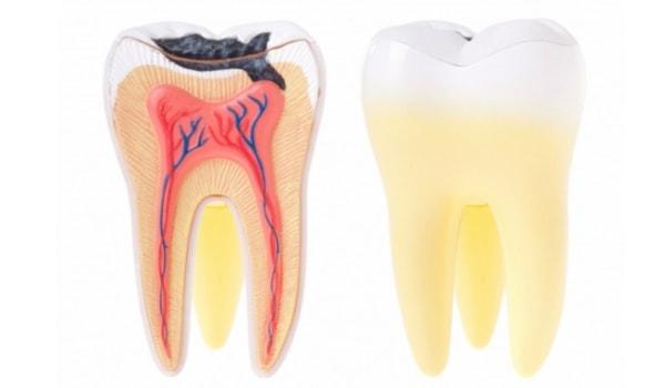 Неполная экстирпация пульпы зуба показания и противопоказания