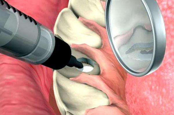 Препараты для внутриканального отбеливания зуба