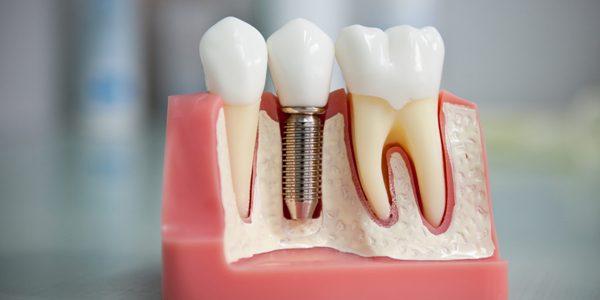 Беременность после имплантации зубов