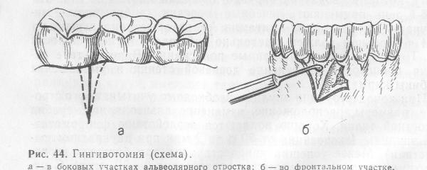 Виды разрезов