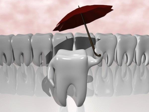 Плюсы и минусы имплантации эмали зубов