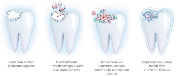 Имплантация эмали зубов отзывы