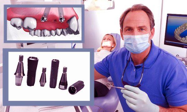 Имплантация зубов плюсы и минусы
