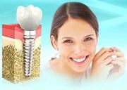 Гарантия на имплантацию зубов
