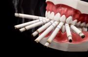 Влияние курения на имплантацию зубов