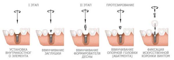 Виды имплантации зубов плюсы и минусы
