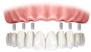 Особенности комплексной имплантации зубов