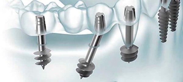 Комплексная имплантация зубов цены