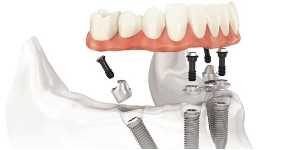 Восстановление после комплексной имплантации зубов