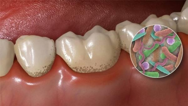 Курение после имплантации зубов отзывы
