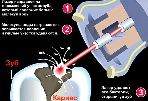 Лечение глубокого кариеса лазером