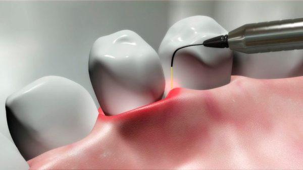 Пародонтит и эффективность его лечения лазером