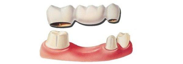 Имплантация зубов плюсы и минусы отзывы