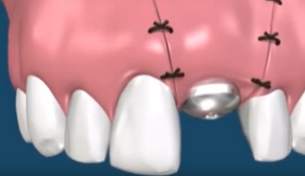 Через сколько снимать швы после имплантации зубов