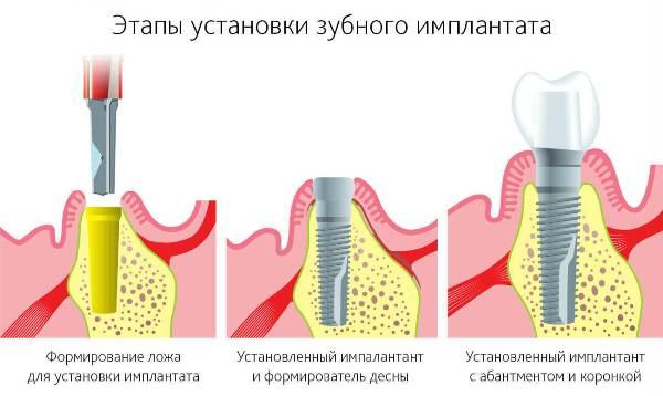 Имплантация передних верхних зубов отзывы