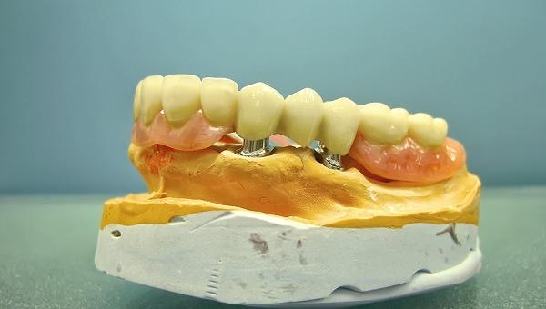 Съемные телескопические зубные протезы и их виды
