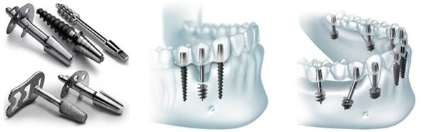 Имплантация сразу после удаления зуба плюсы