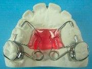 Ортодонтический аппарат пендулум