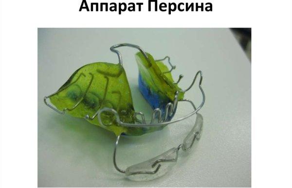 Тактика коррекции дистальной окклюзии аппаратом Персина
