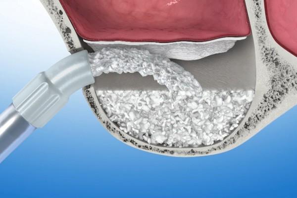 Bio oss 0.5 collagen костнозамещающий материал