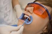 Классификация десенситайзеров в стоматологии