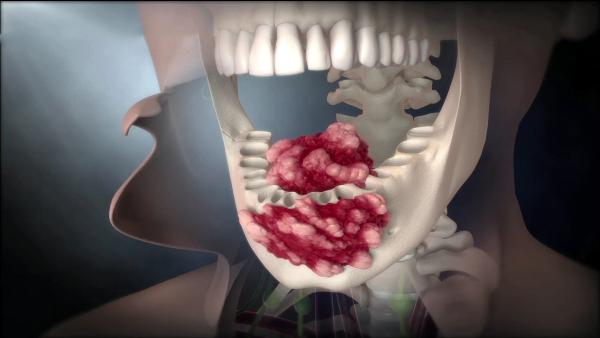Злокачественные опухоли слизистой оболочки полости рта фото