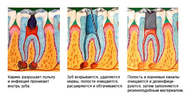 Эндодонтическое лечение зубов что это такое