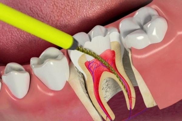 Эндодонтическое лечение зубов что это такое и какой инструментарий применяется