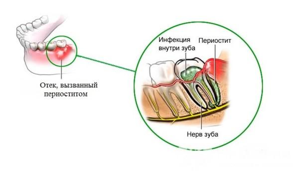 Инфекция в канале зуба симптомы и лечение