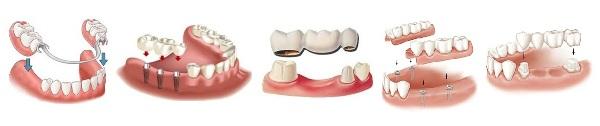 Материал для изготовления съемных зубных протезов