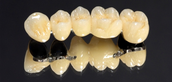 Материал для зубных протезов какой лучше