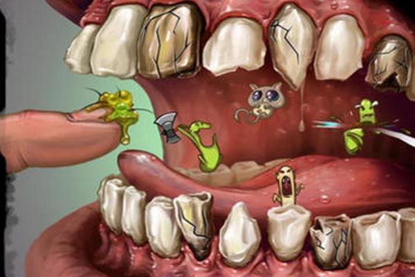 Как проводится лечение инфекции зубов у детей и взрослых