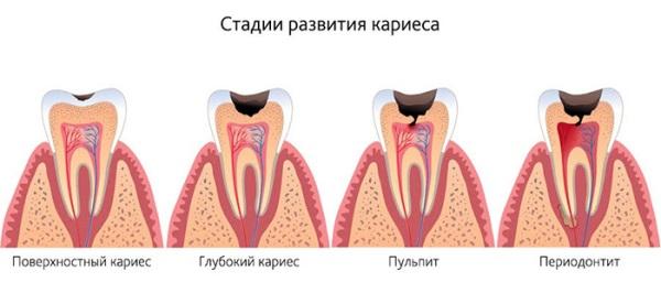 Методы диагностики начального кариеса зубов