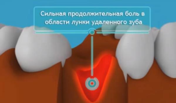 Неоконус  в стоматологии правила использования