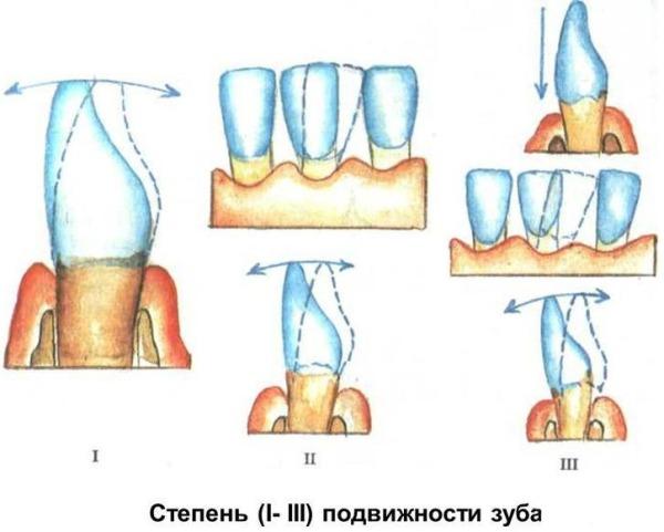 Определение степени подвижности зуба