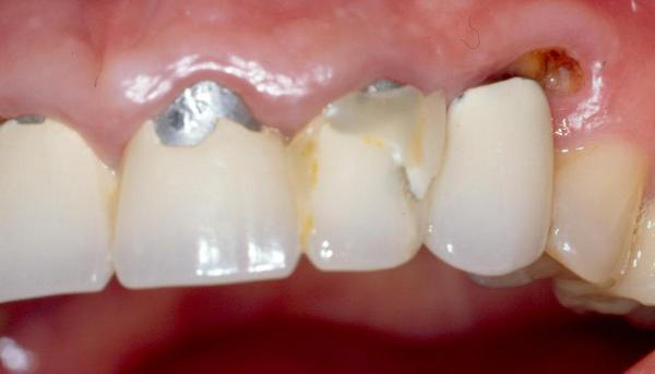 Полное восстановление коронки зуба