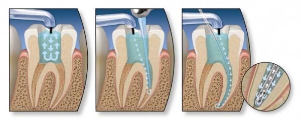 Этапы эндодонтического лечения молочных зубов