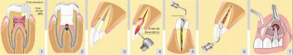 Материал для ретроградного пломбирования корневых каналов