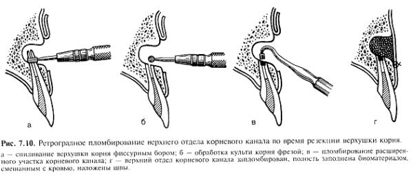 Набор инструментов для ретроградного пломбирования корневых каналов