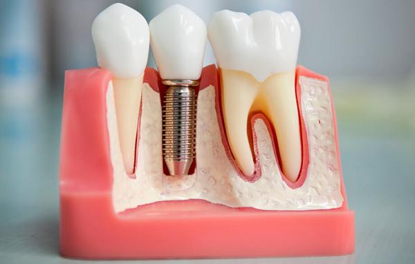 Сколько держится температура после имплантации зубов