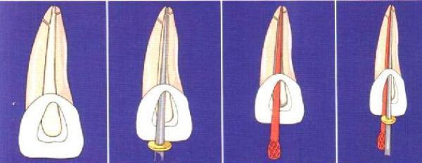 Аппарат для обтурации корневых каналов разогретой гуттаперчей