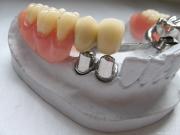 Изготовление телескопических зубных протезов