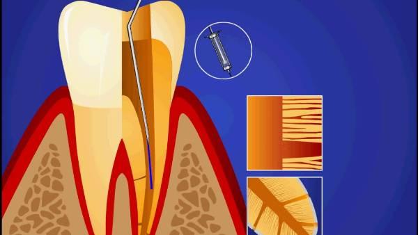 Методы обтурации корневых каналов зубов