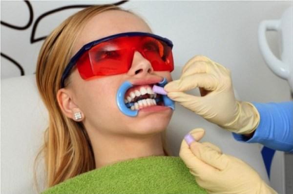 Bleach n Smile отбеливание зубов