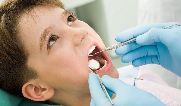 Пломбировочный материал Эстелайт для реставрации передних зубов