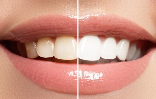 Гели для химического отбеливания зубов