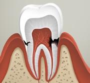 Кариес цемента зуба