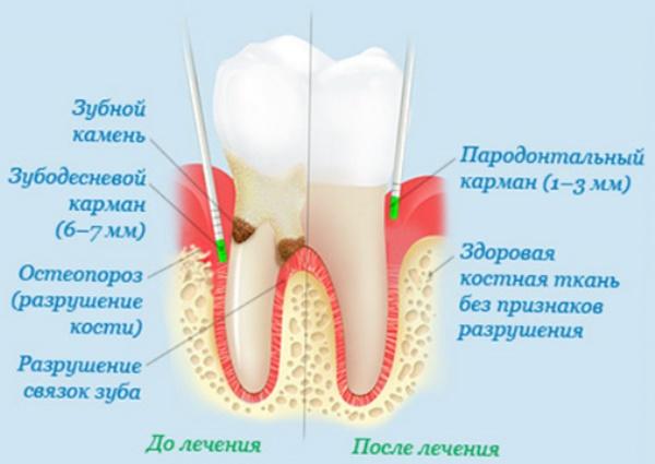 Коллапан в стоматологии инструкция