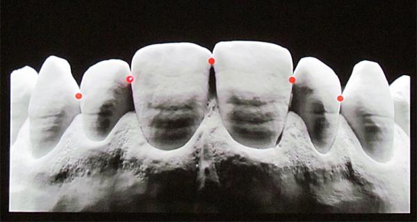 Правила пломбирования с сохранением контактного пункта зуба