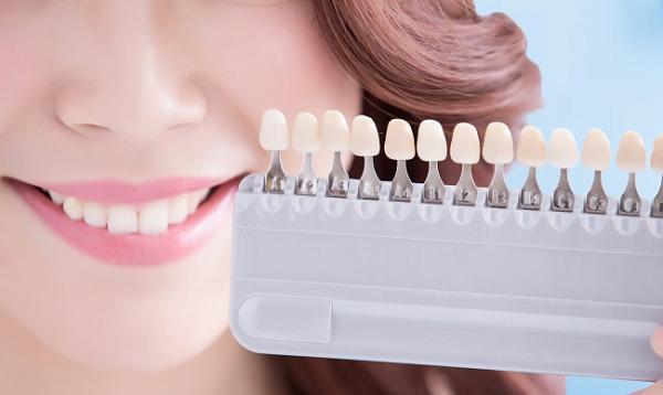 Отбеливание зубов химическим способом